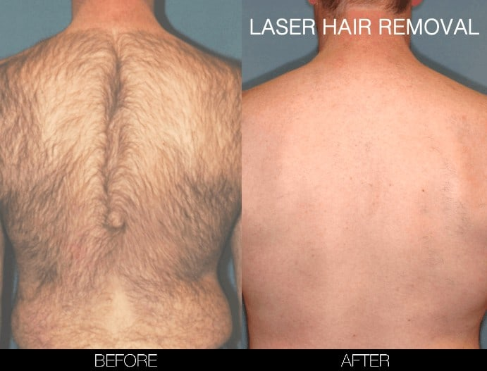 Laser Hair Removal - Patient Before and After Gallery – Photo 17