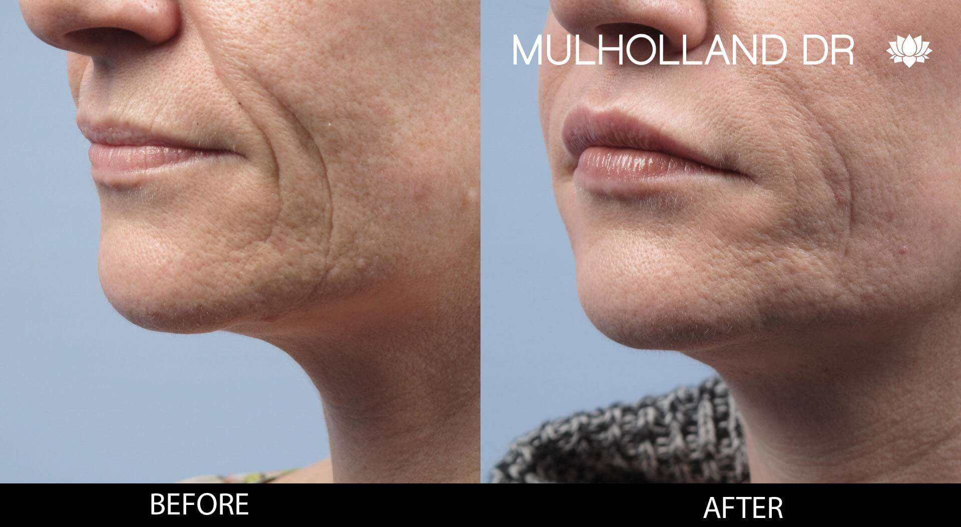 Lip Augmentation- Before and After Gallery – Photo 21