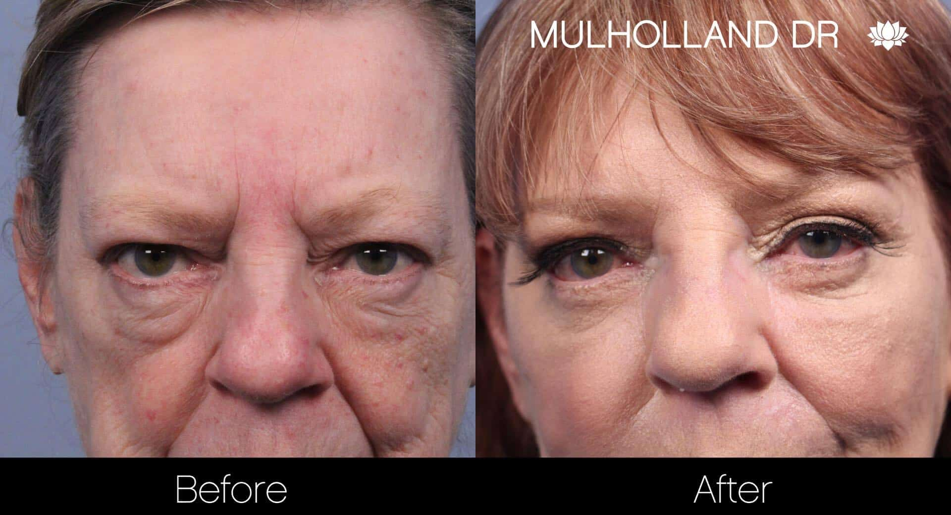 Laser Skin Resurfacing - Before and After Gallery – Photo 43