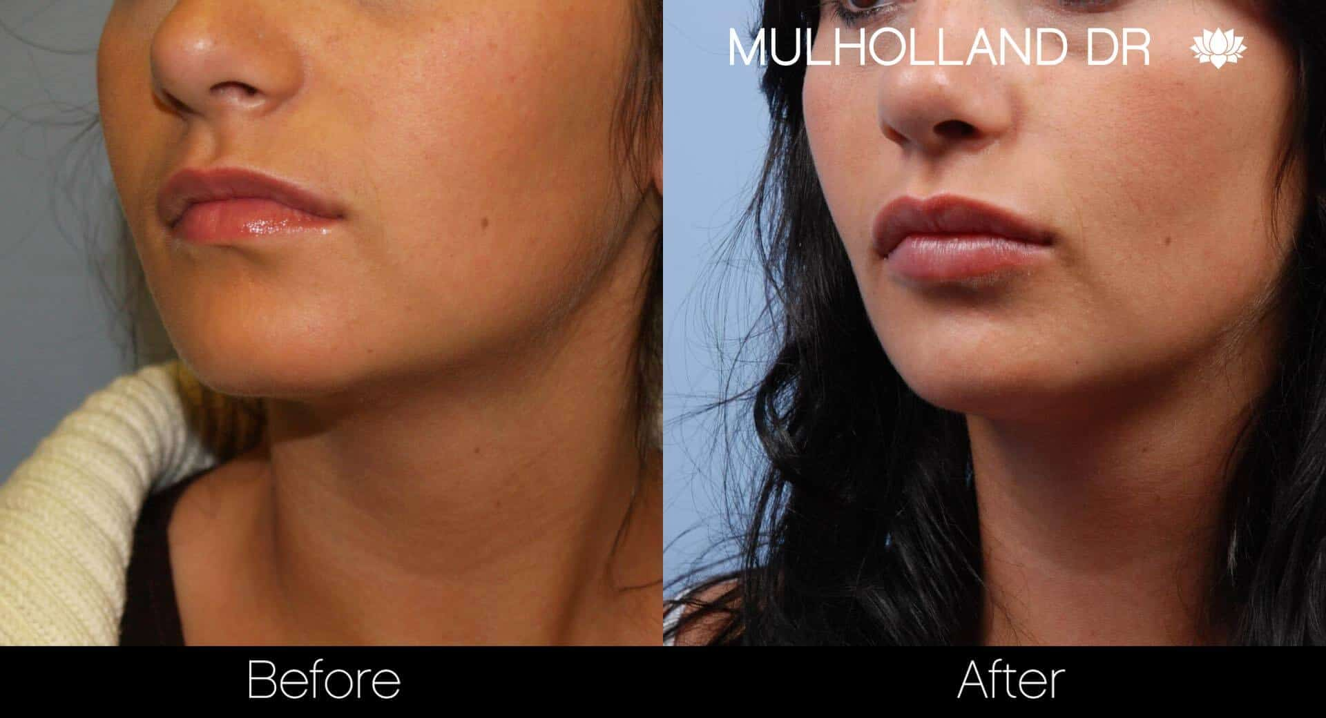 Lip Augmentation- Before and After Gallery – Photo 22