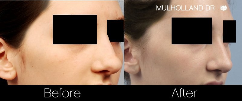 Rhinoplasty - Before and After Gallery – Photo 18