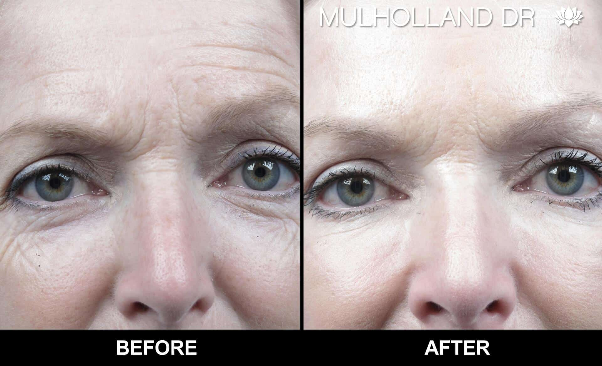 Laser Skin Resurfacing - Before and After Gallery – Photo 19
