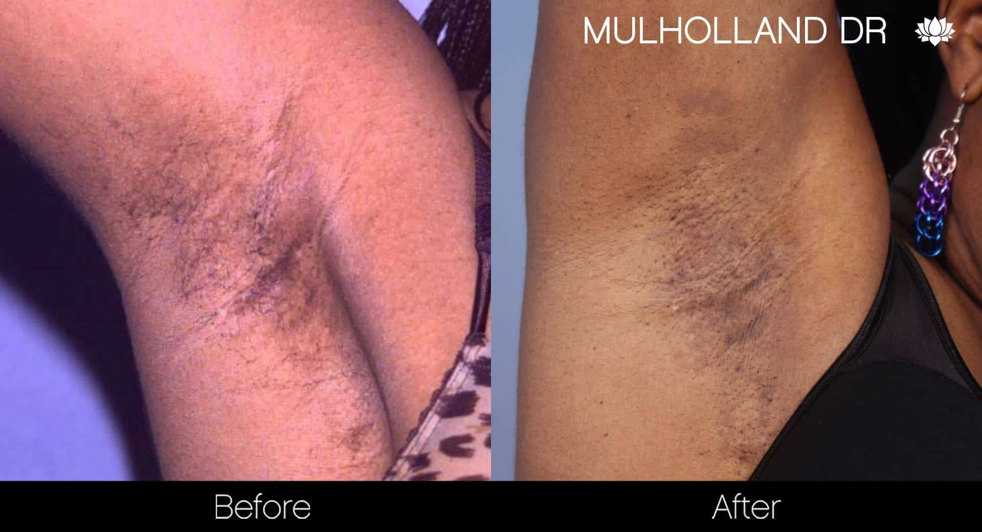 Laser Hair Removal - Patient Before and After Gallery – Photo 19