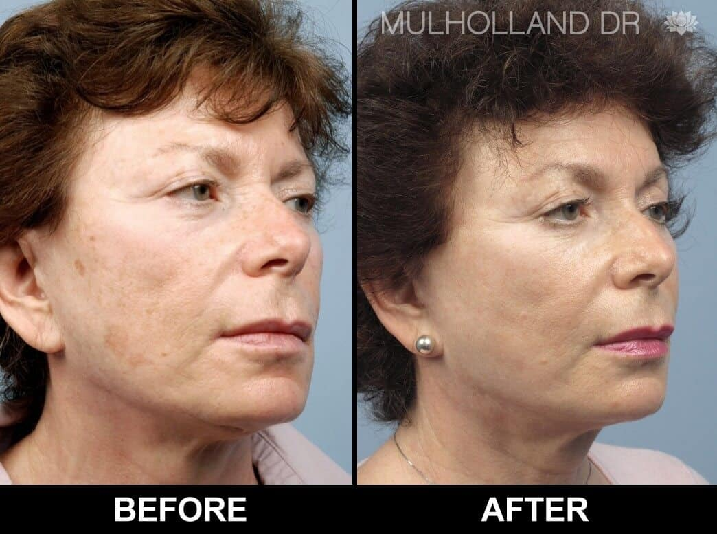 Microdermabrasion - Before and After Gallery – Photo 31