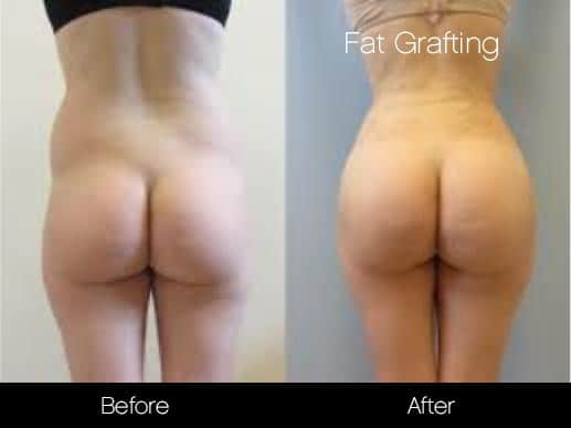 Brazilian Butt Lift - Before and After Gallery – Photo 19