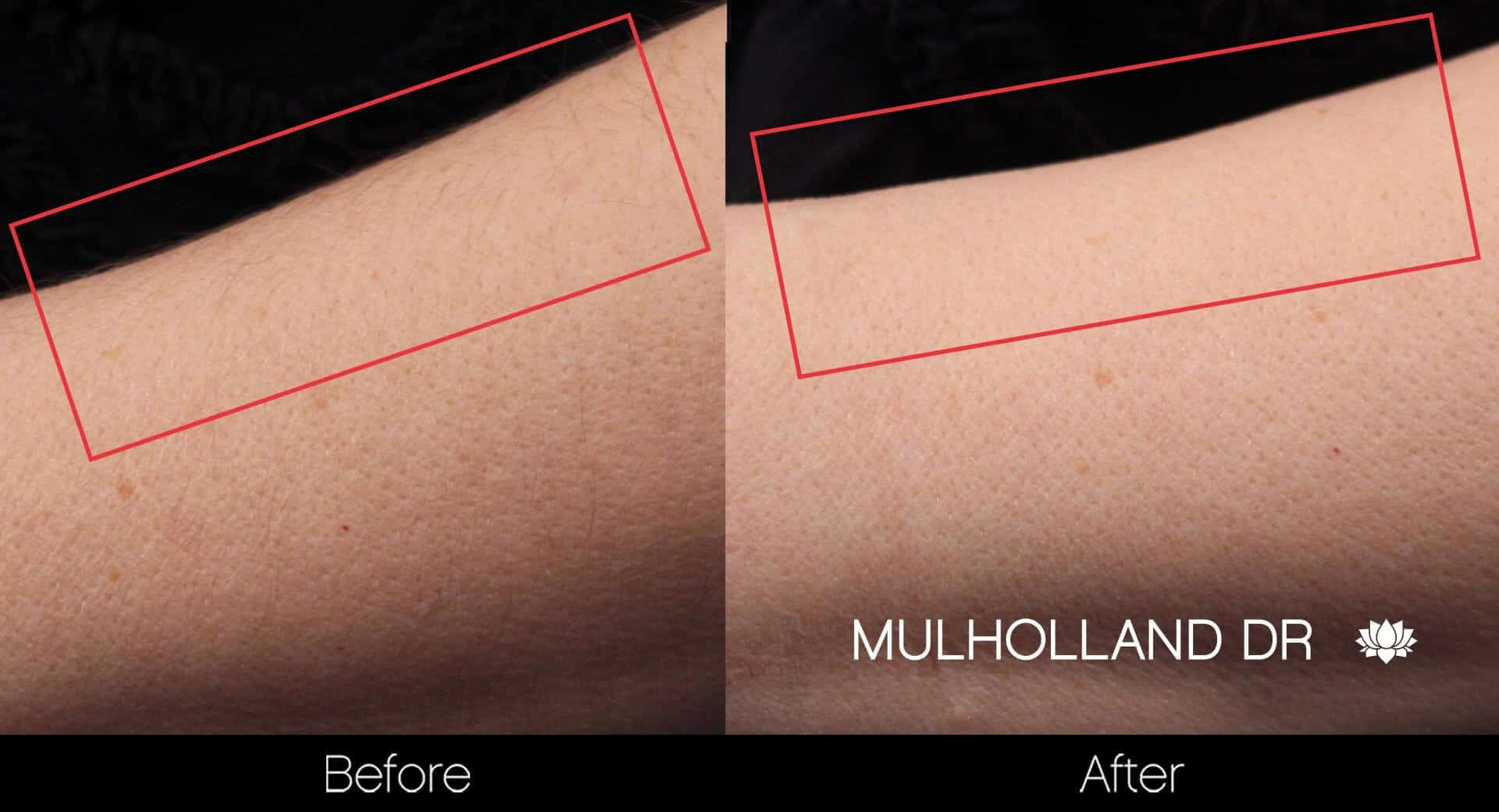 Laser Hair Removal - Patient Before and After Gallery – Photo 20