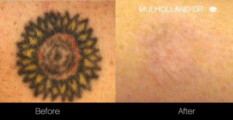 Laser Tattoo Removal - Before and After Gallery – Photo 20