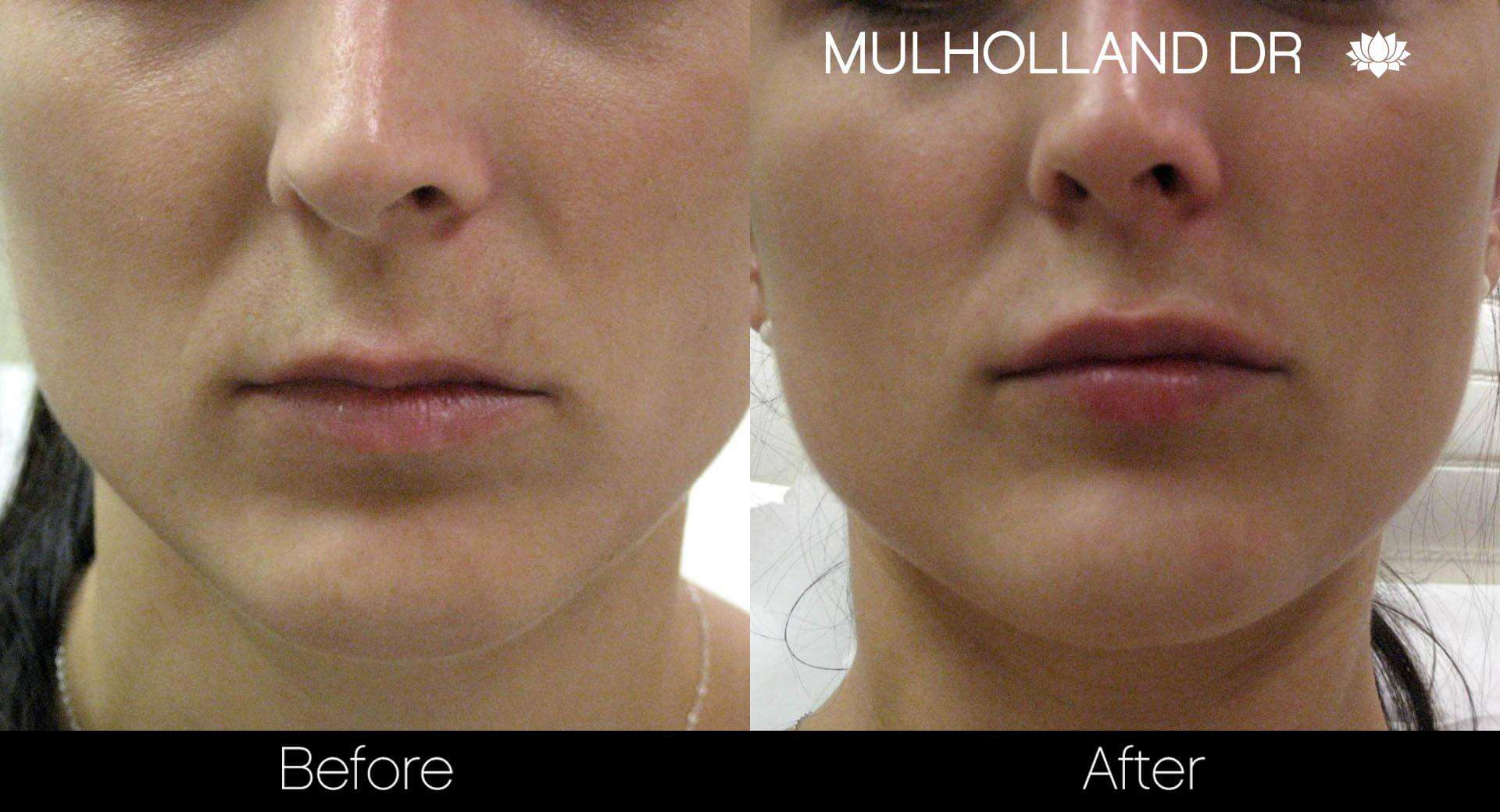 Lip Augmentation- Before and After Gallery – Photo 23