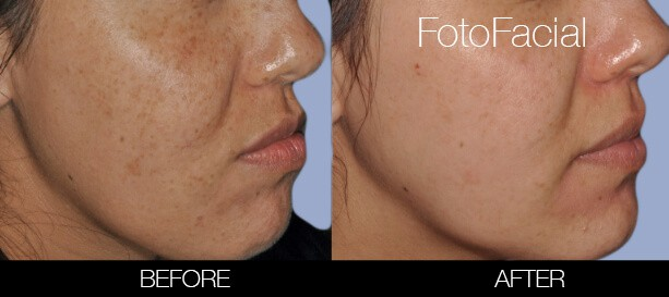 FotoFacial - Before and After Gallery – Photo 29