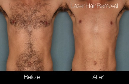 Laser Hair Removal - Patient Before and After Gallery – Photo 21