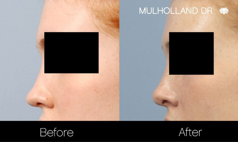 Rhinoplasty - Before and After Gallery – Photo 21