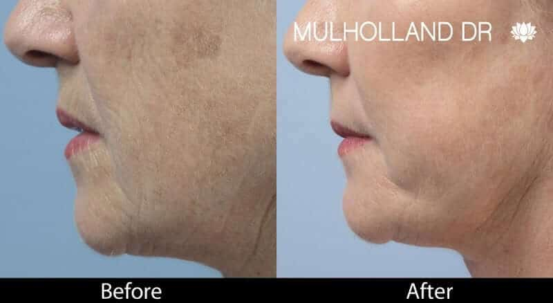 Laser Skin Resurfacing - Before and After Gallery – Photo 45