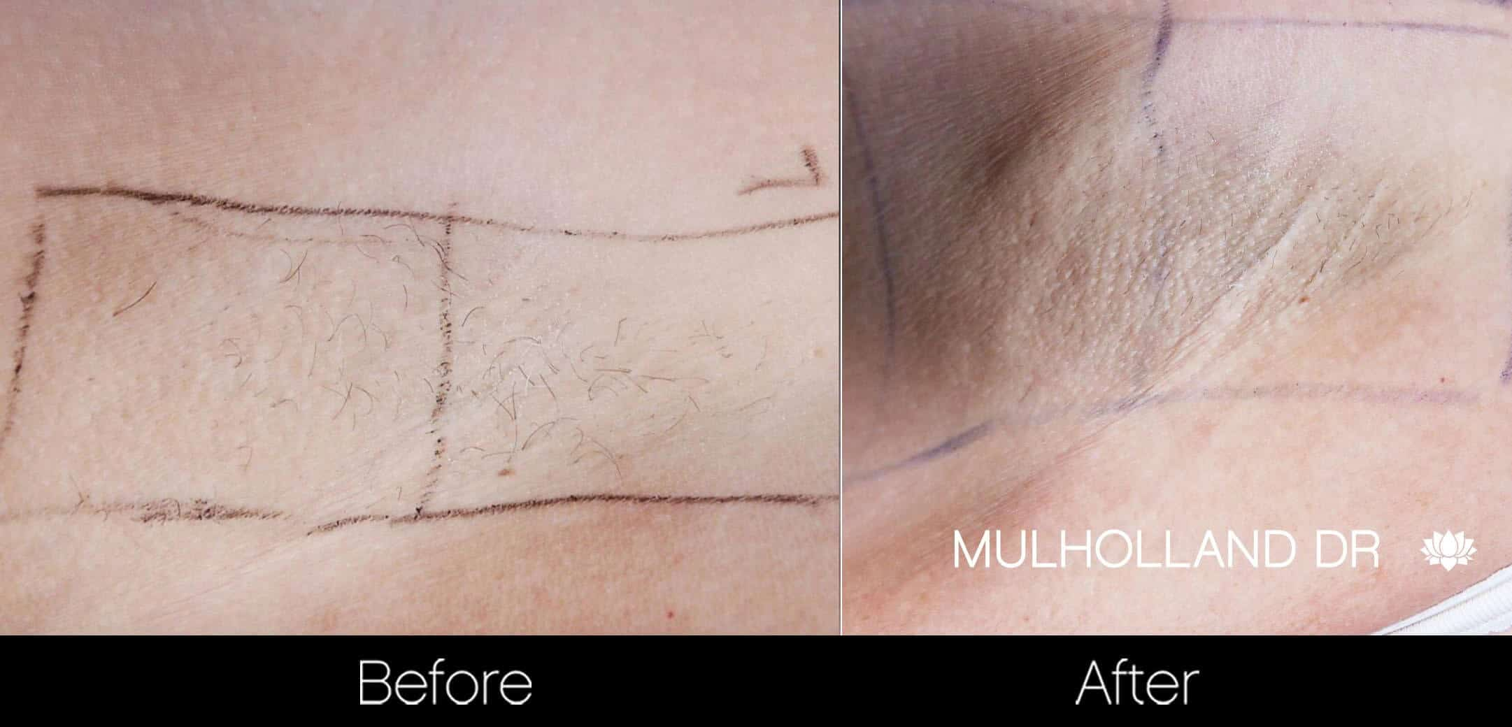 Laser Hair Removal - Patient Before and After Gallery – Photo 22