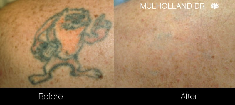 Laser Tattoo Removal - Before and After Gallery – Photo 22