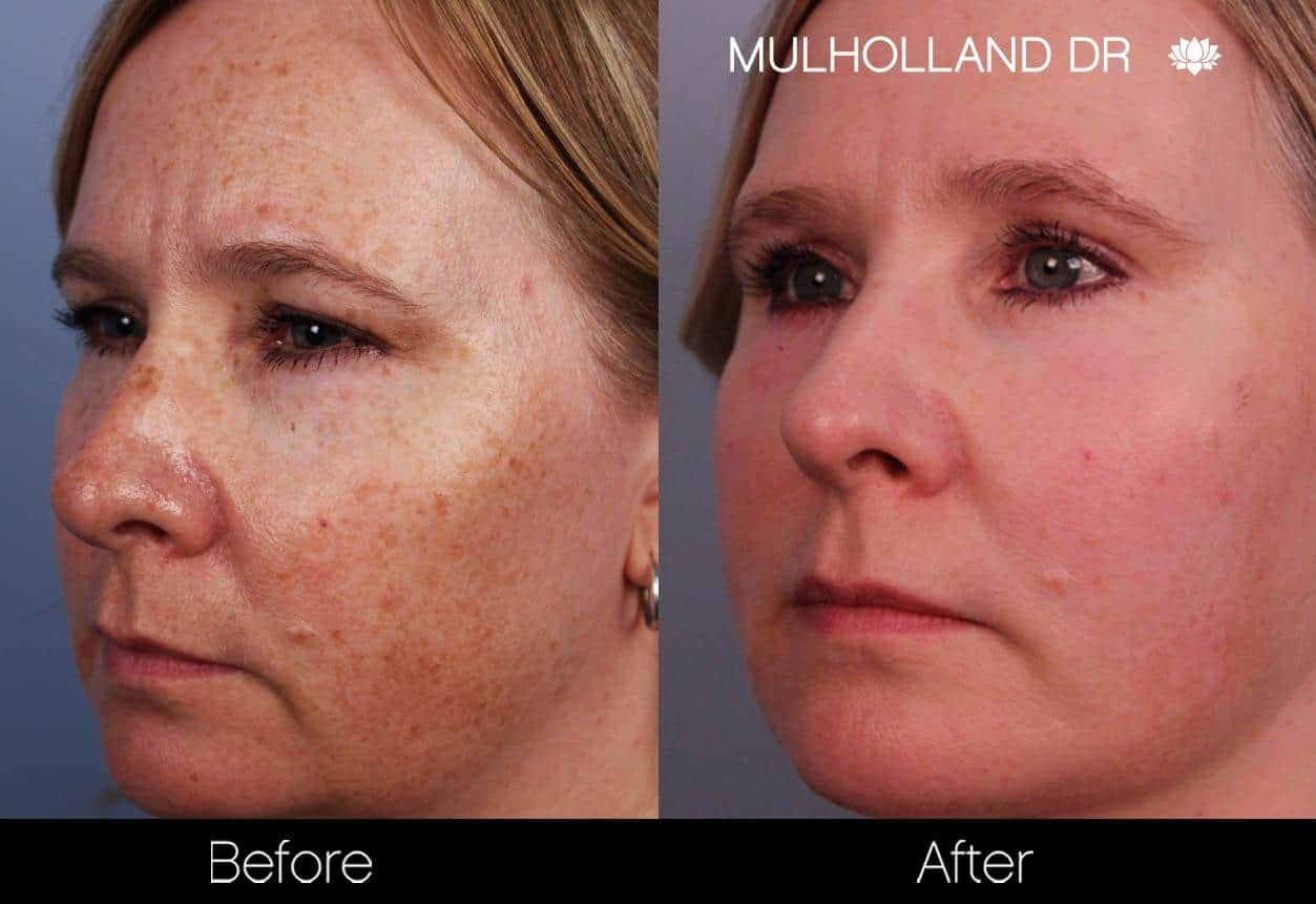 FotoFacial - Before and After Gallery – Photo 25