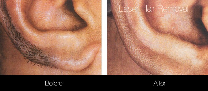 Laser Hair Removal - Patient Before and After Gallery – Photo 23