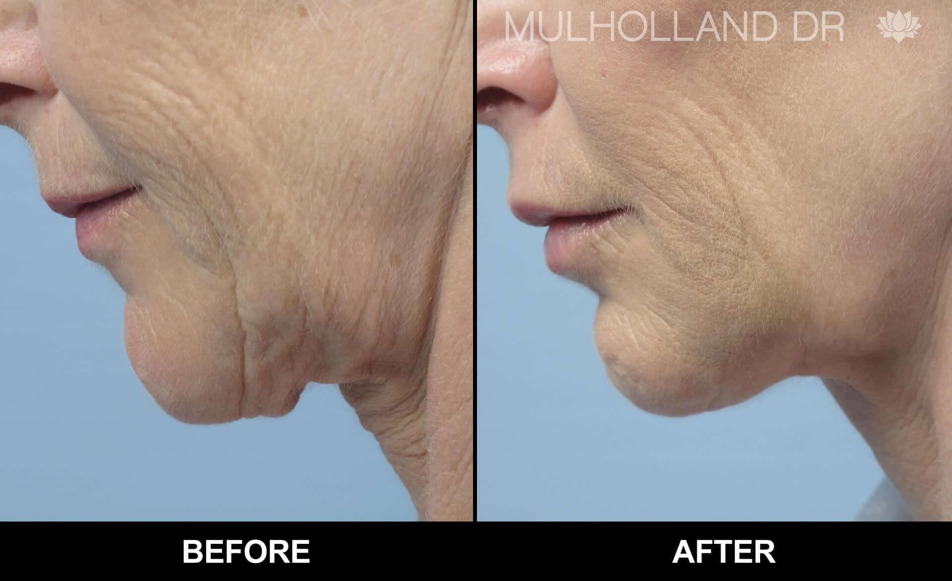 Laser Skin Resurfacing - Before and After Gallery – Photo 21
