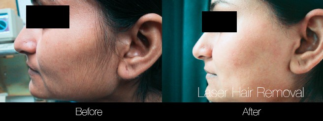 Laser Hair Removal - Patient Before and After Gallery – Photo 24