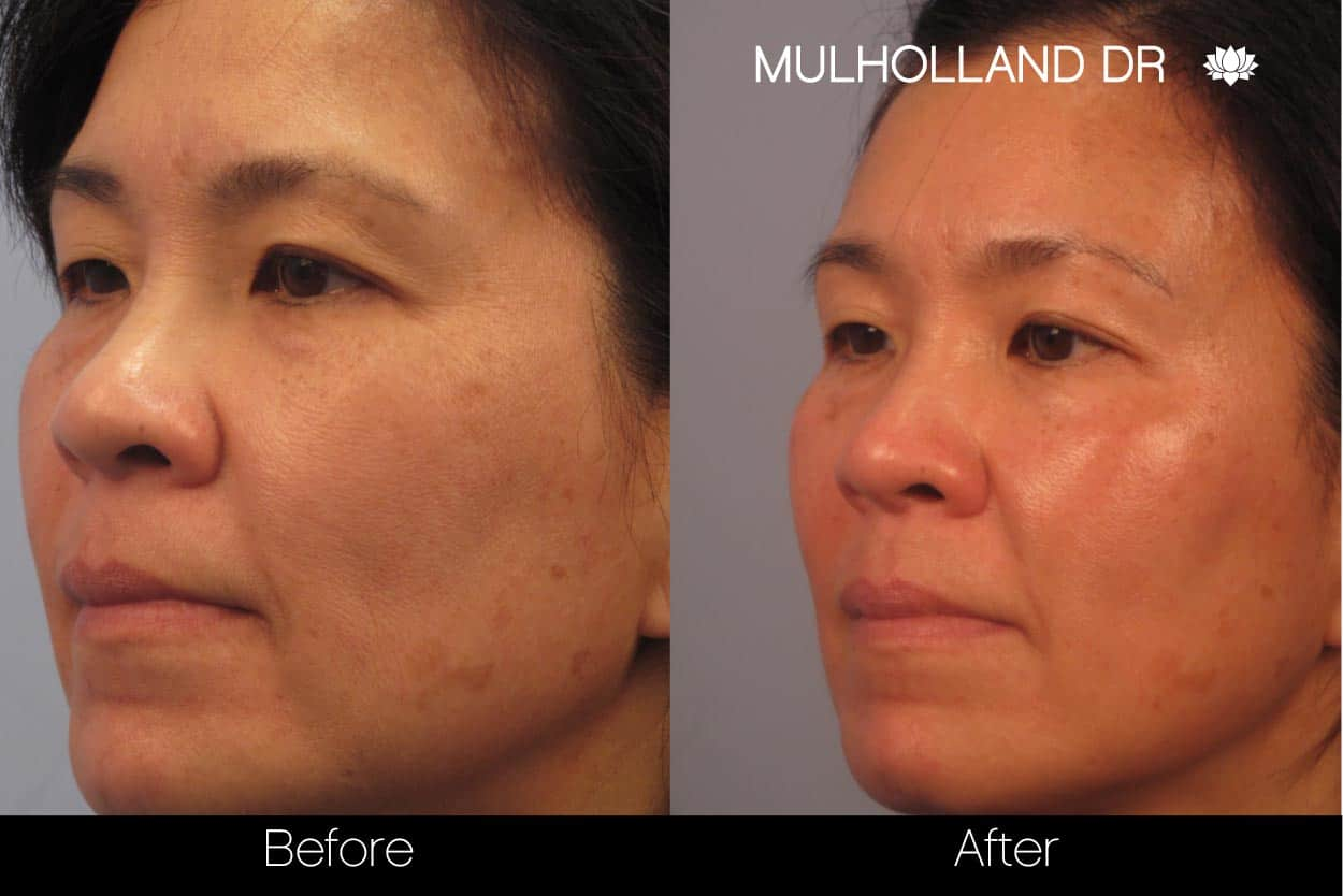 FotoFacial - Before and After Gallery – Photo 33
