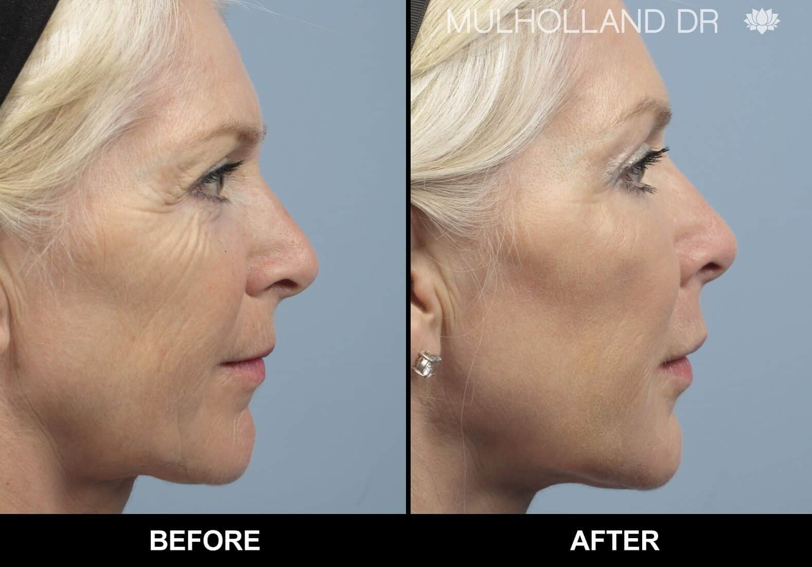 Laser Skin Resurfacing - Before and After Gallery – Photo 22