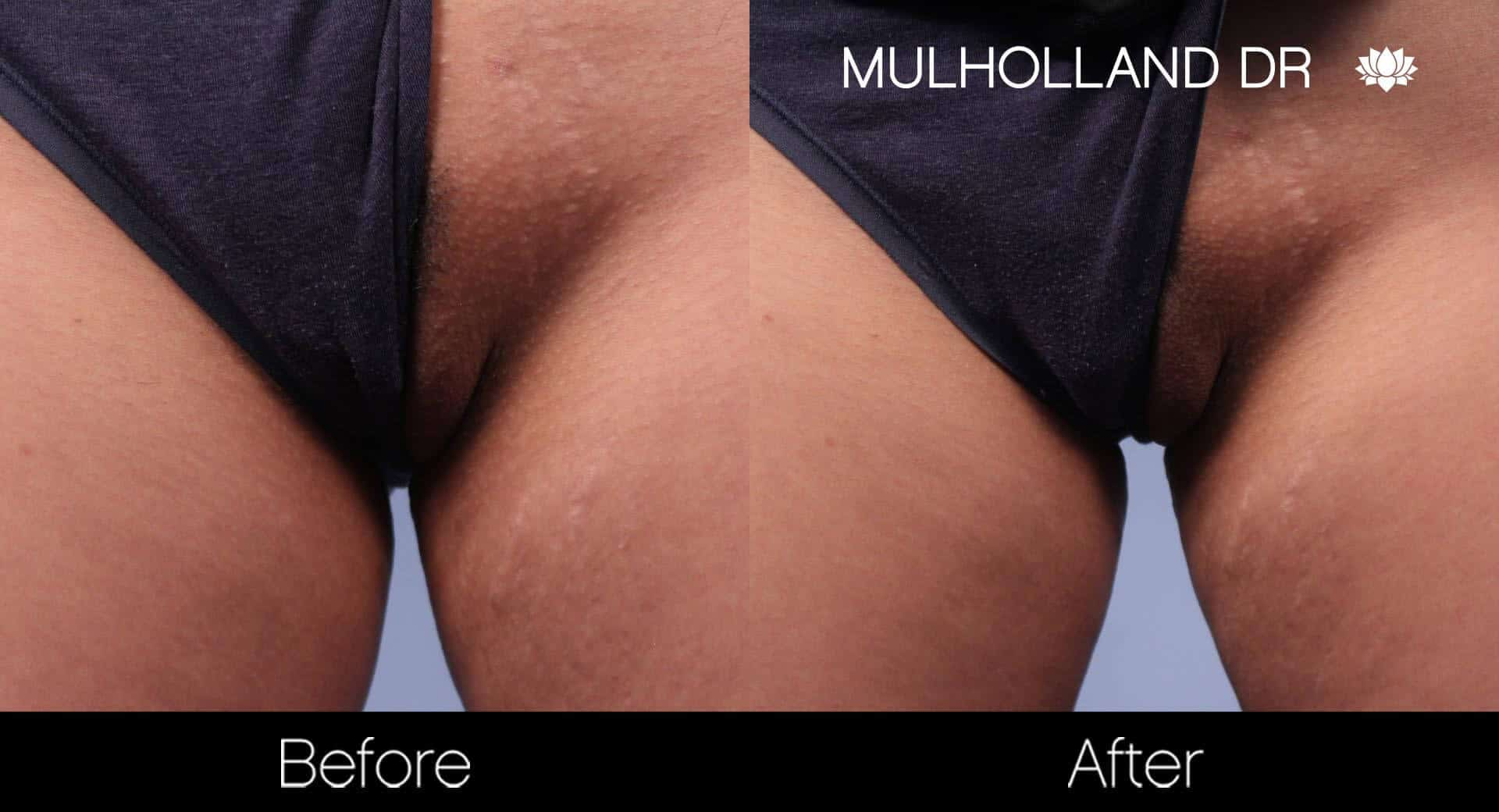 Laser Hair Removal - Patient Before and After Gallery – Photo 26