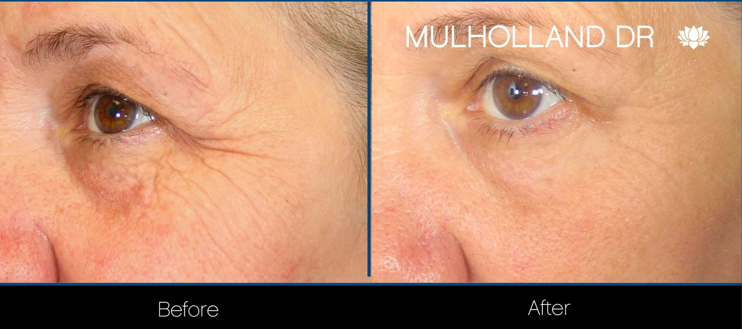 Laser Skin Resurfacing - Before and After Gallery – Photo 48