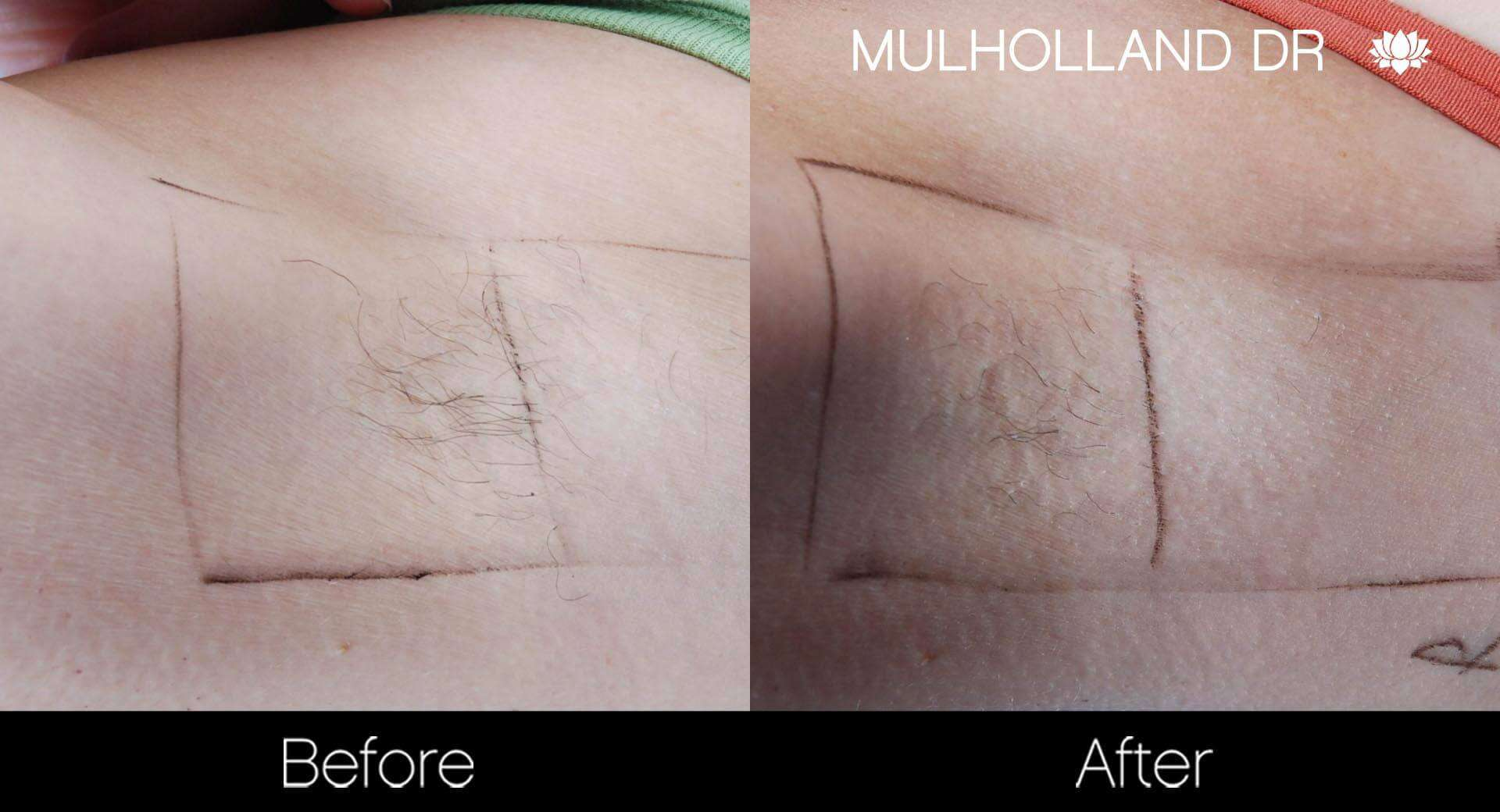 Laser Hair Removal - Patient Before and After Gallery – Photo 27