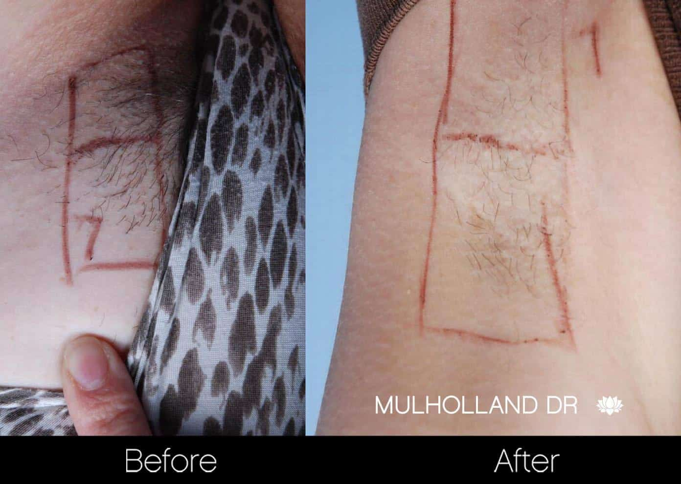 Laser Hair Removal - Patient Before and After Gallery – Photo 29
