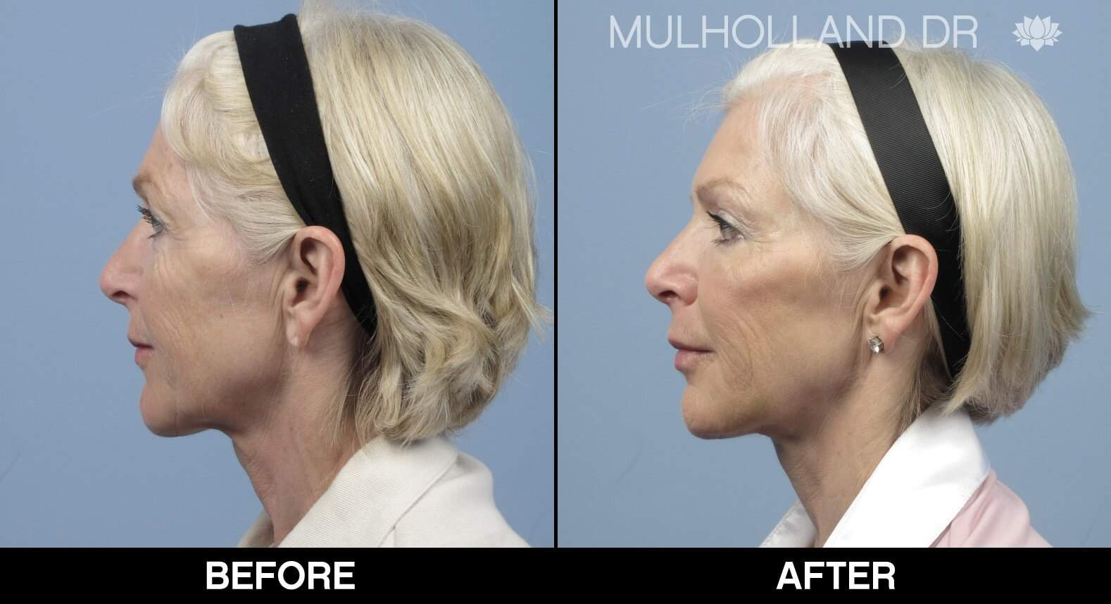 Laser Skin Resurfacing - Before and After Gallery – Photo 24