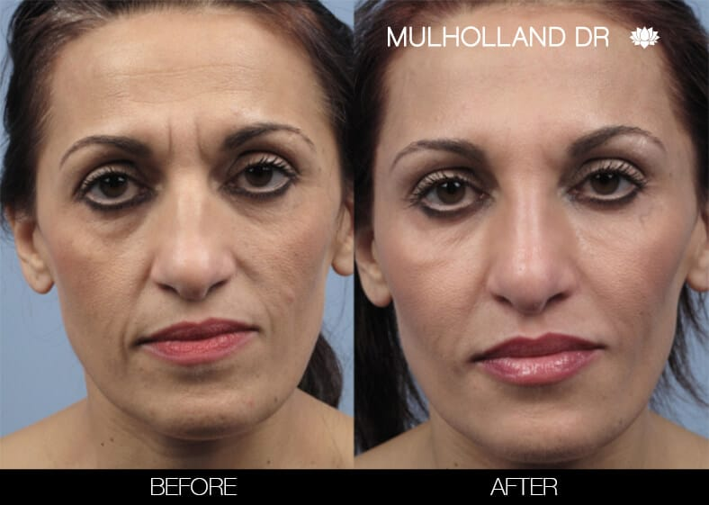 Laser Skin Resurfacing - Before and After Gallery – Photo 49