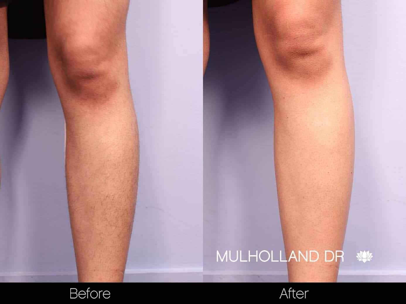 Laser Hair Removal - Patient Before and After Gallery – Photo 31