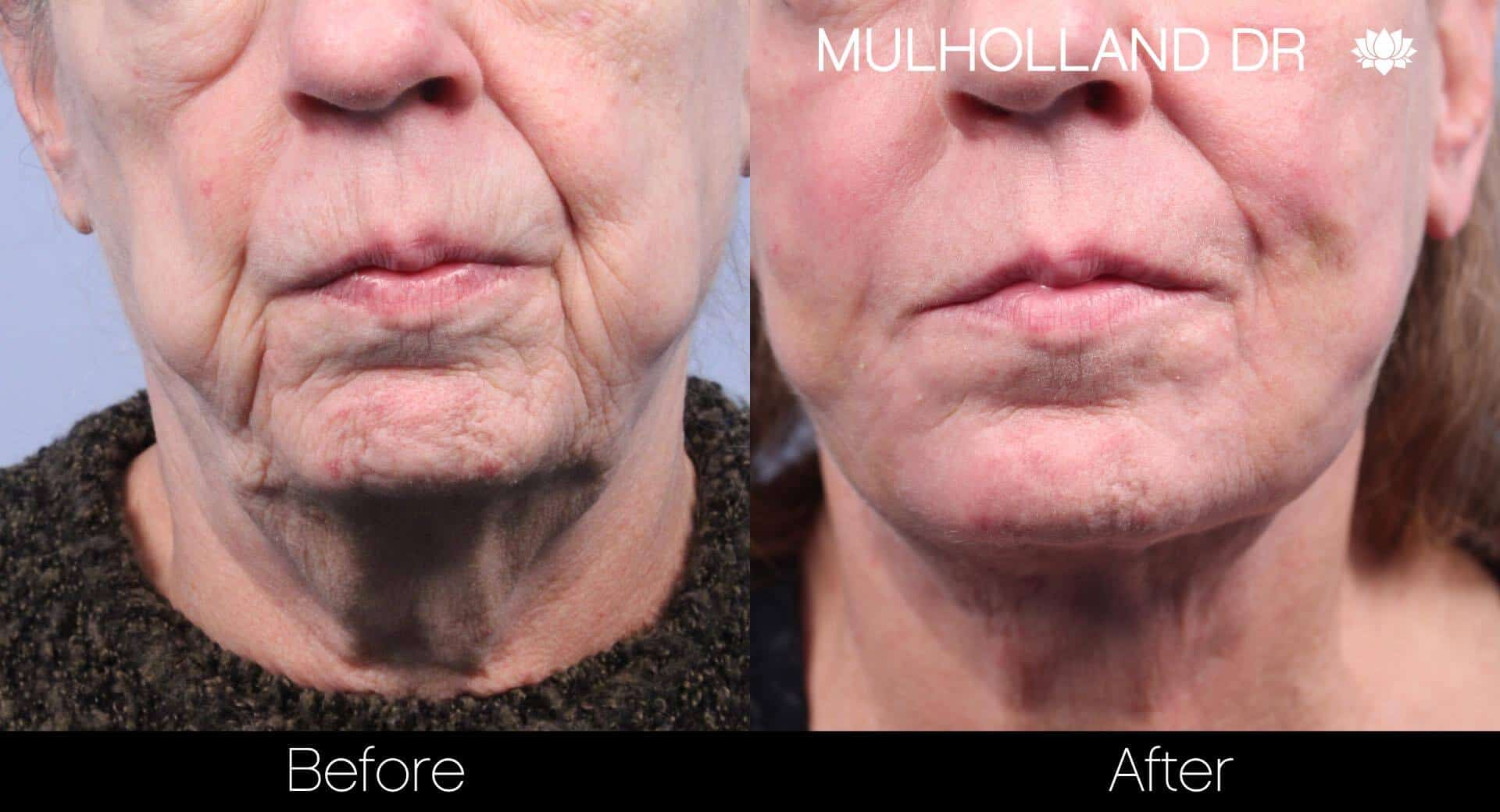 Lip Augmentation- Before and After Gallery – Photo 29