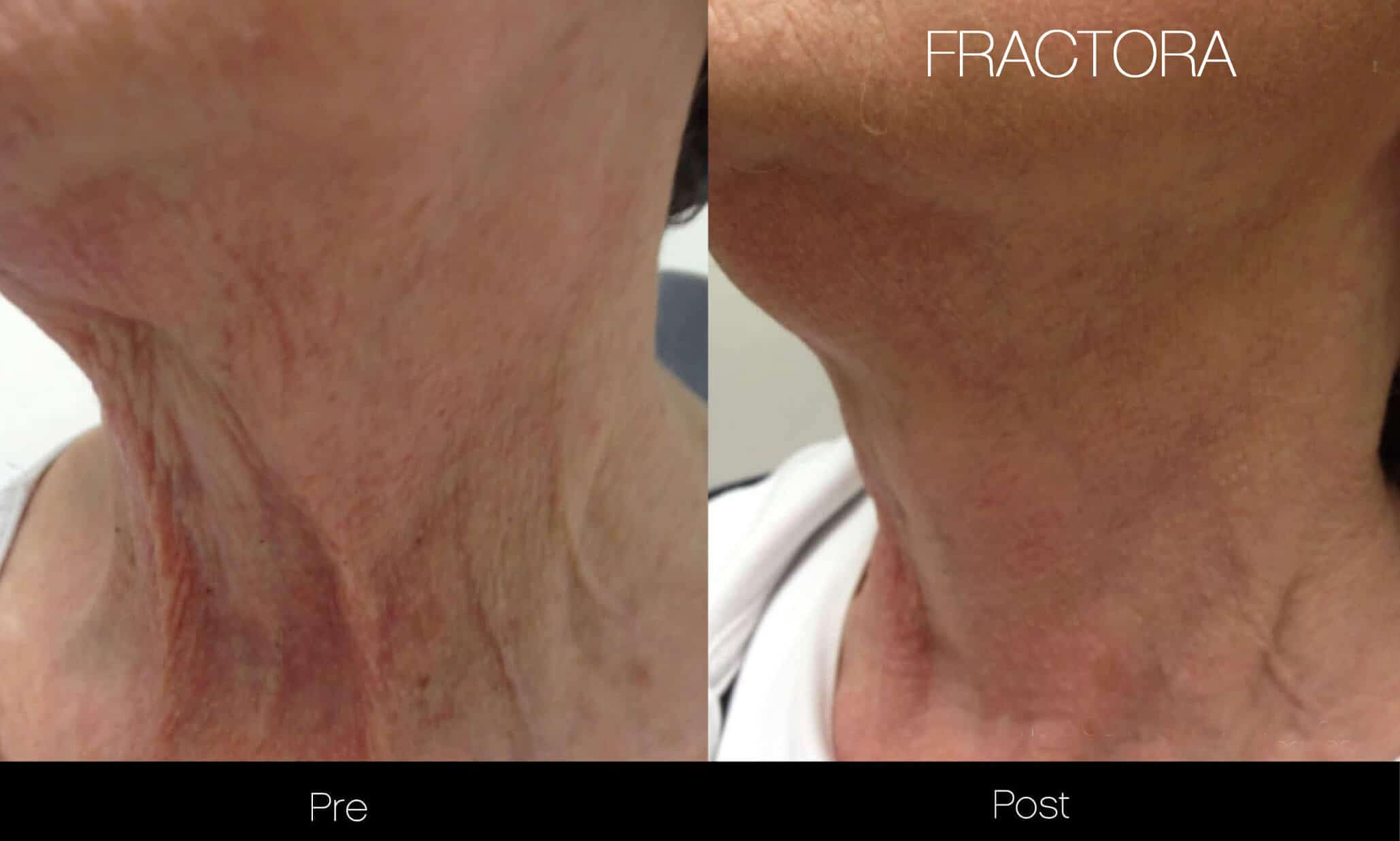 Laser Skin Resurfacing - Before and After Gallery – Photo 52