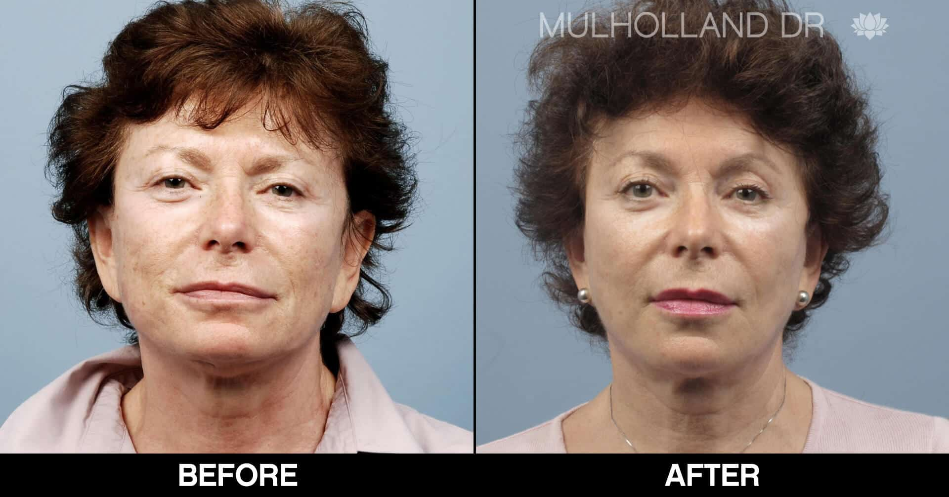 Lip Augmentation- Before and After Gallery – Photo 30