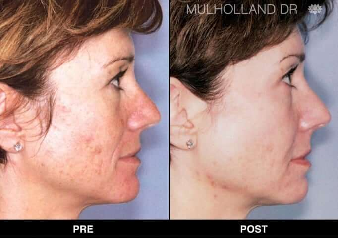 FotoFacial - Before and After Gallery – Photo 18