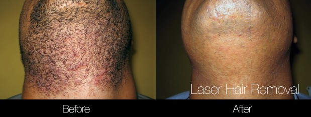 Laser Hair Removal - Patient Before and After Gallery – Photo 32