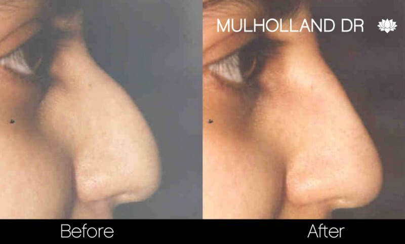 Rhinoplasty - Before and After Gallery – Photo 29