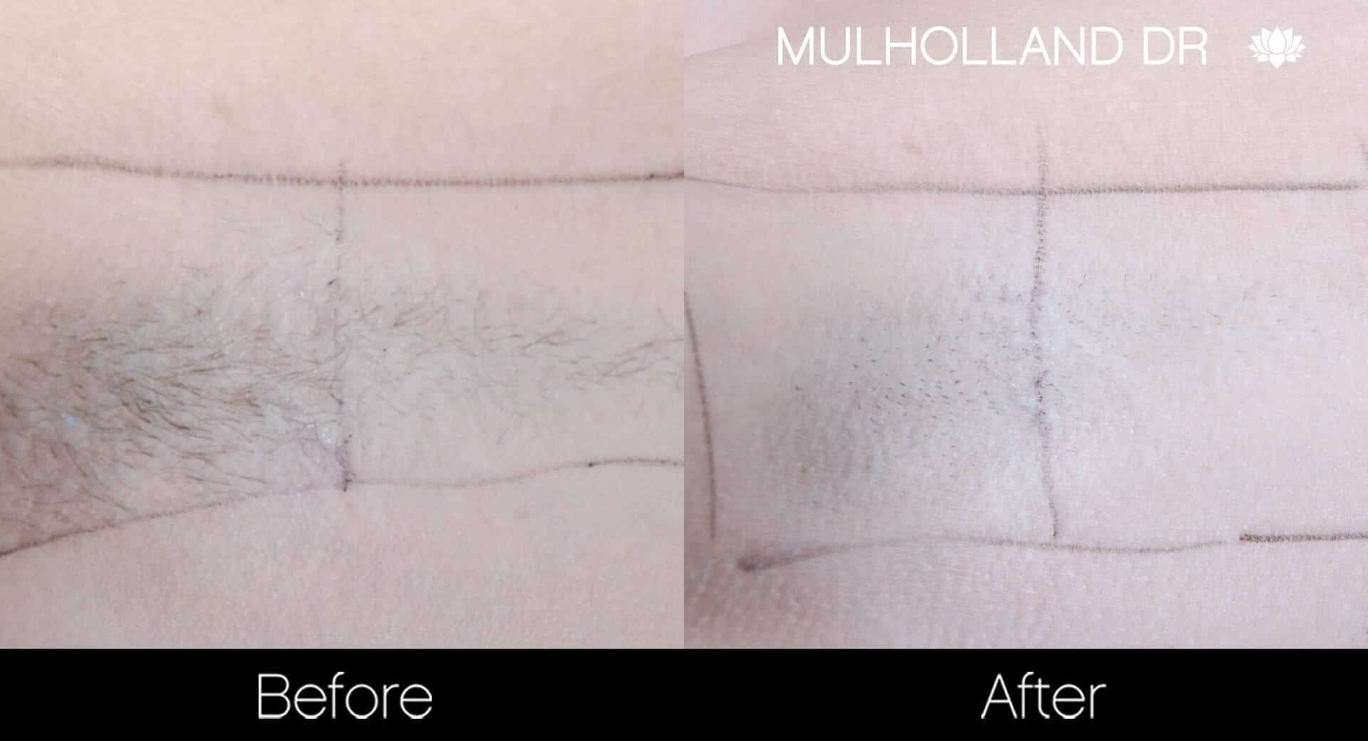 Laser Hair Removal - Patient Before and After Gallery – Photo 33
