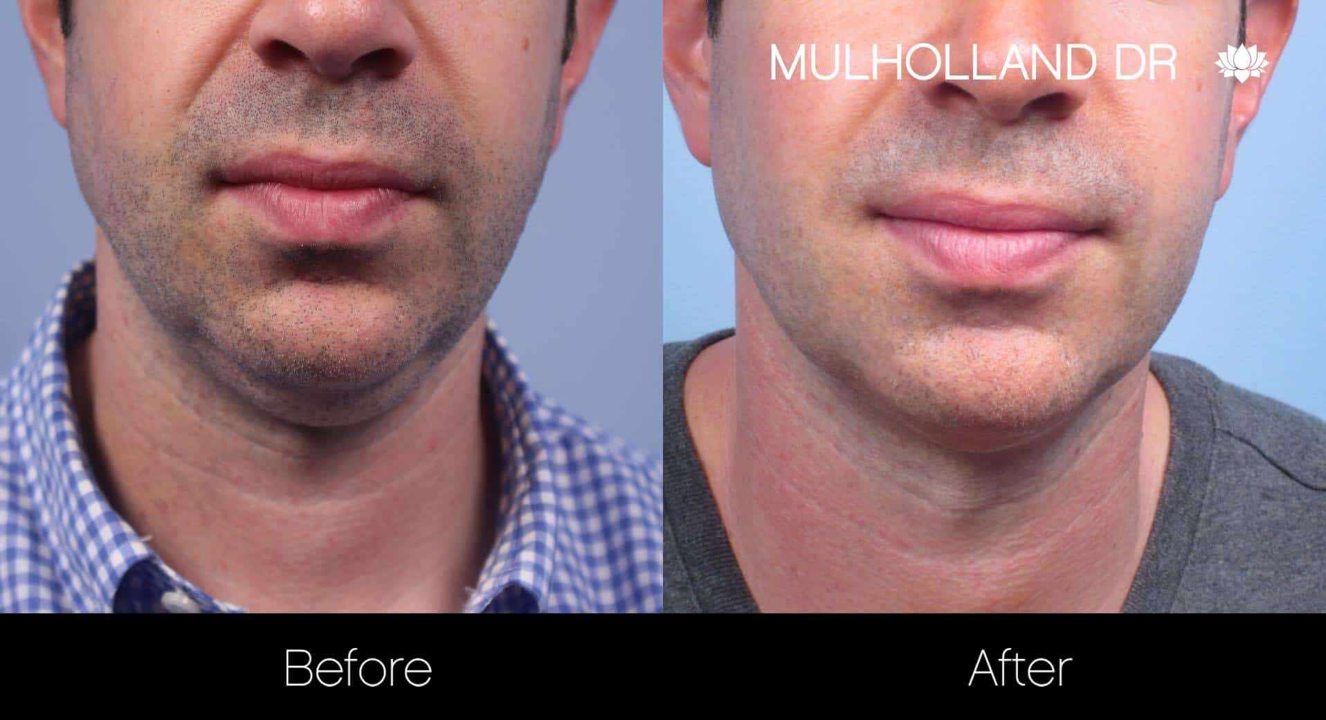 Chin Implant - Before and After Gallery – Photo 32