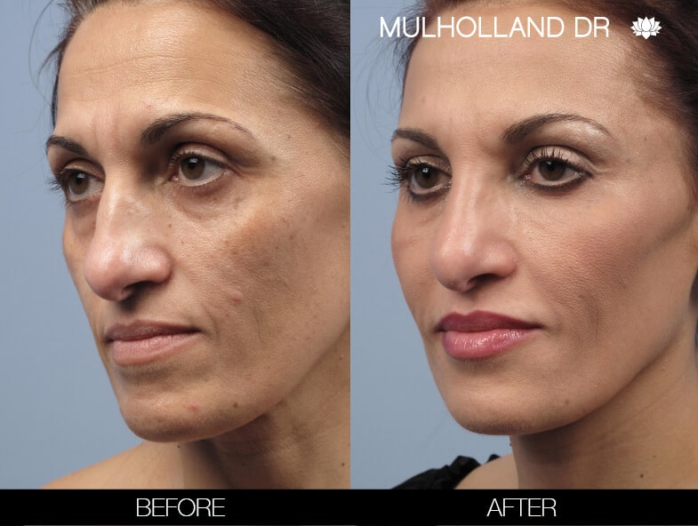 Laser Skin Resurfacing - Before and After Gallery – Photo 51