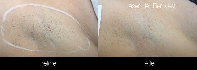 Laser Hair Removal - Patient Before and After Gallery – Photo 34