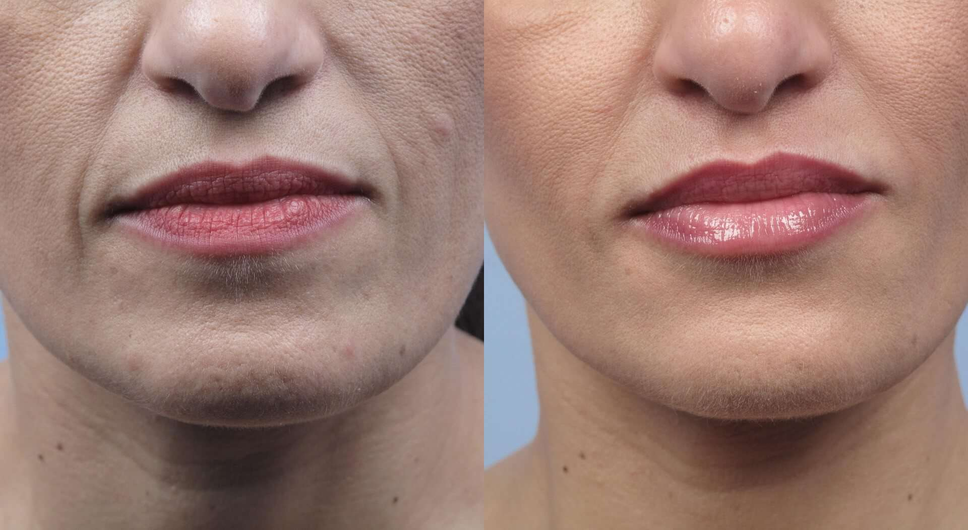 Microdermabrasion - Before and After Gallery – Photo 35