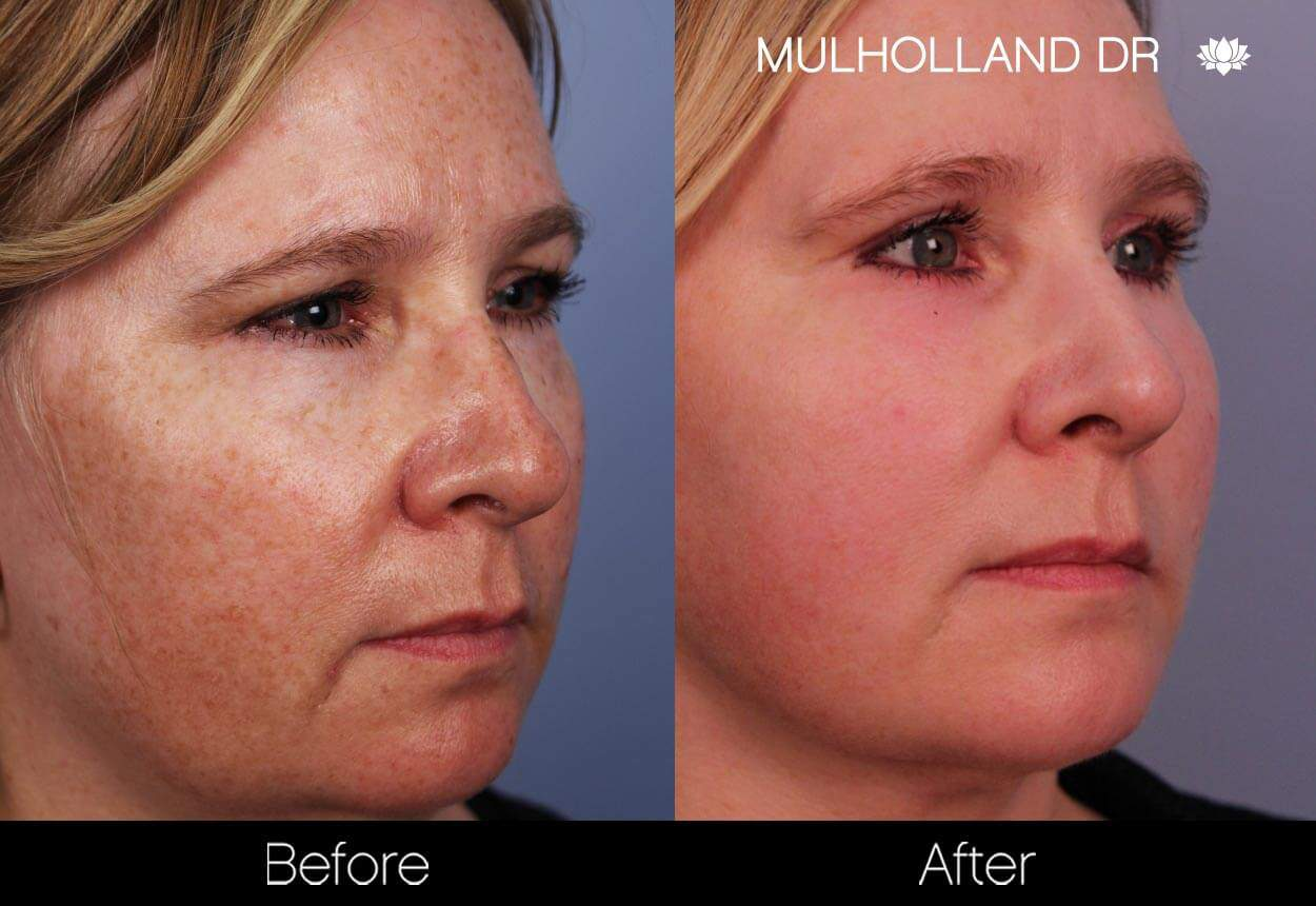 FotoFacial - Before and After Gallery – Photo 27