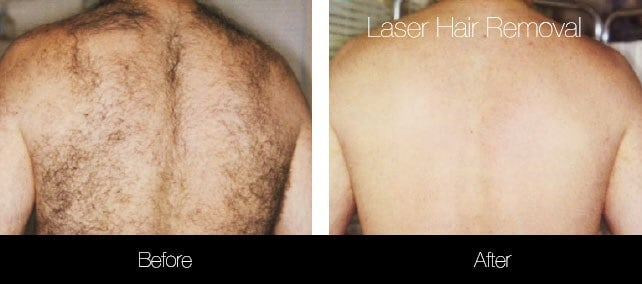 Laser Hair Removal - Patient Before and After Gallery – Photo 35