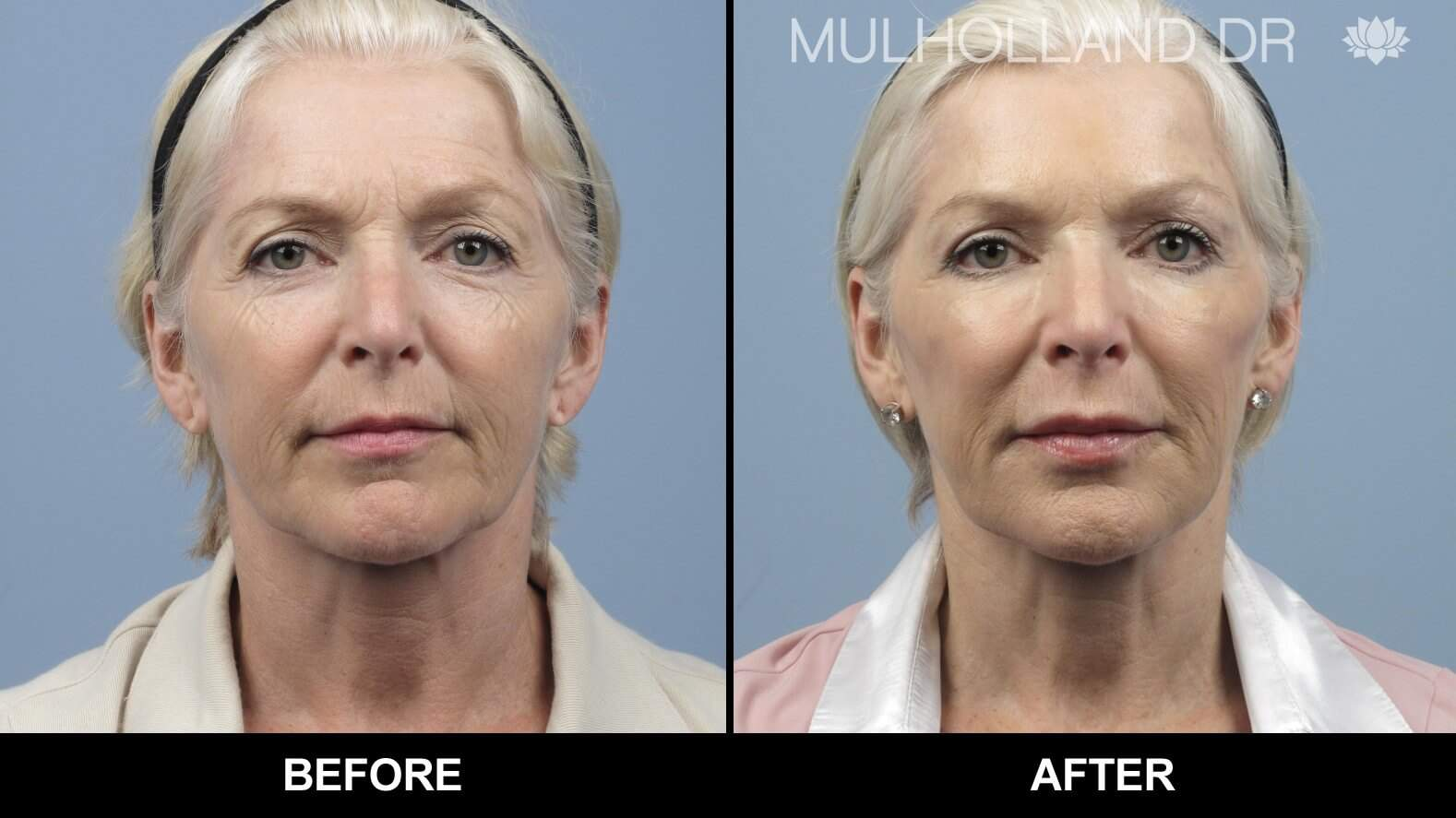 Laser Skin Resurfacing - Before and After Gallery – Photo 27