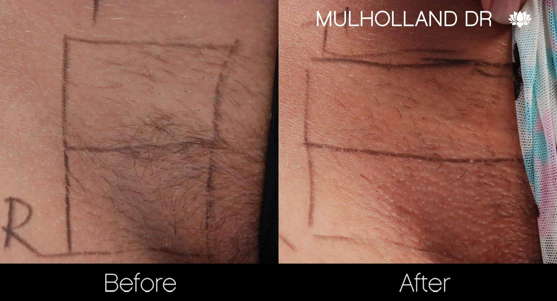 Laser Hair Removal - Patient Before and After Gallery – Photo 36