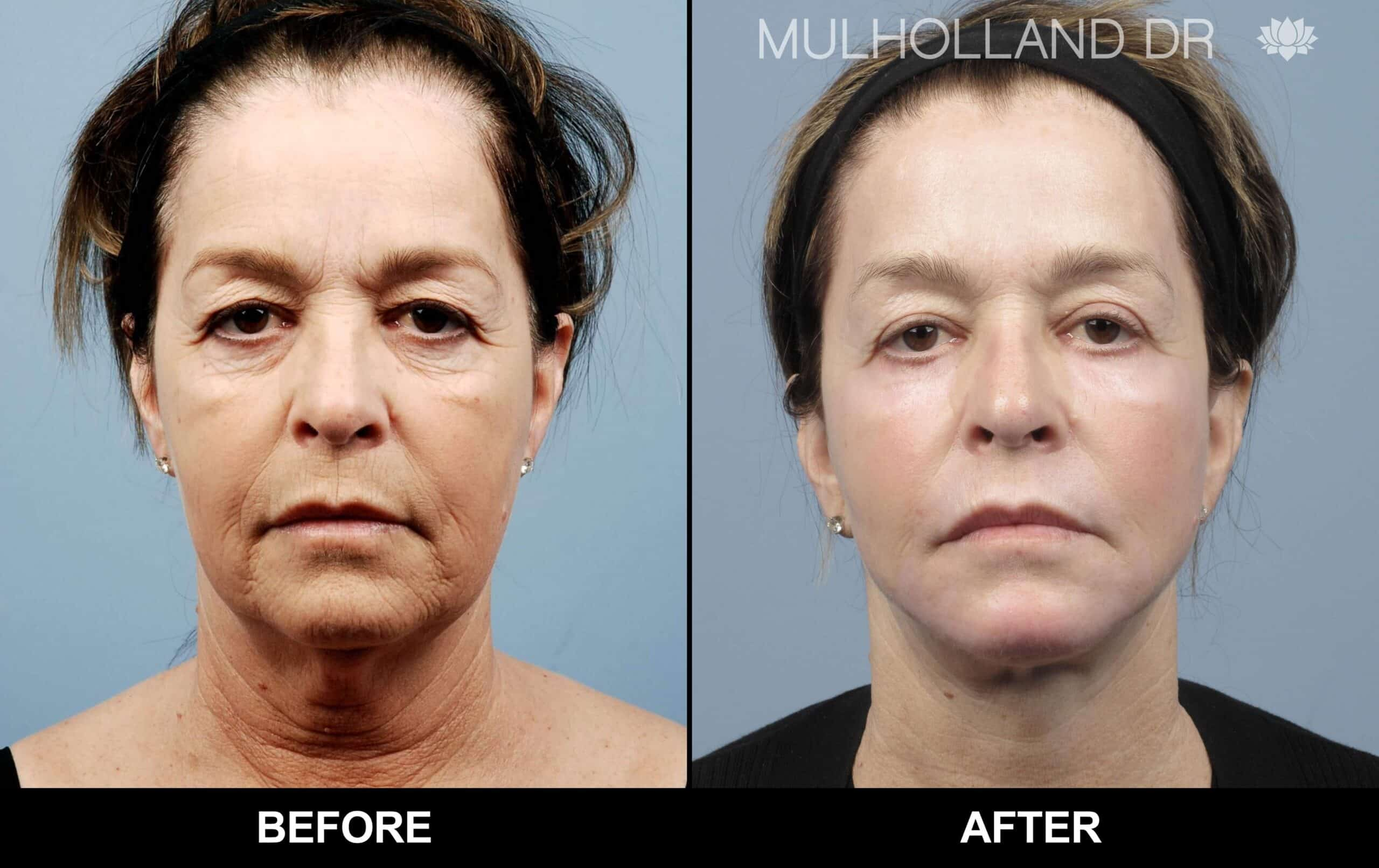 Laser Skin Resurfacing - Before and After Gallery – Photo 35