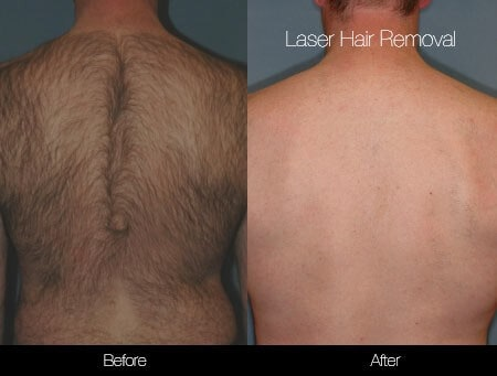 Laser Hair Removal - Patient Before and After Gallery – Photo 37