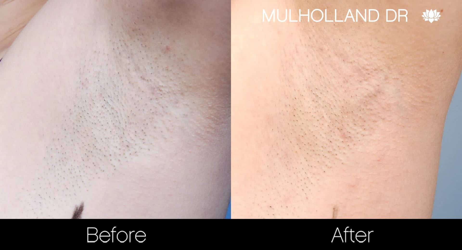 Laser Hair Removal - Patient Before and After Gallery – Photo 38