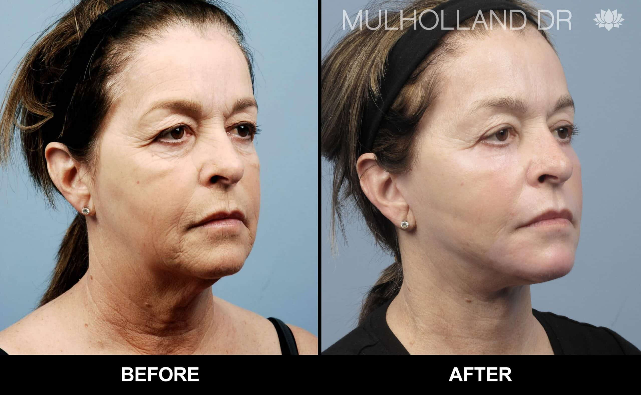 Laser Skin Resurfacing - Before and After Gallery – Photo 37
